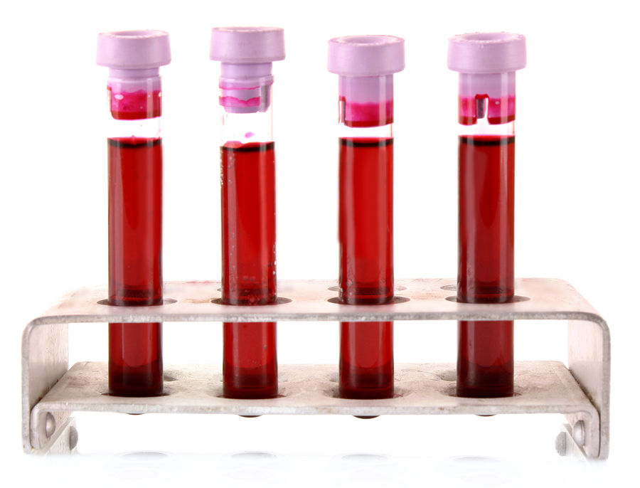 HIV - Medical test tubes with blood in holder on white background